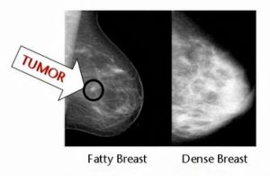More About Dense Breasts