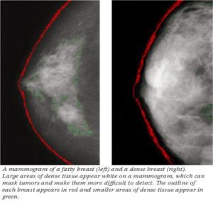 New Swedish Study Released on Dense Breasts