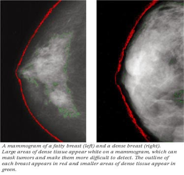 Breast Cancer and Breast Density